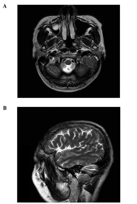 ct temporal bone report template hearing loss due to metastasis of gastric cancer to