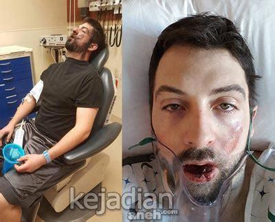 Target Jari Beladiri Dapat 2pc awas bahaya vape meledak di mulut hoax kah ini kejadian aneh tapi nyata