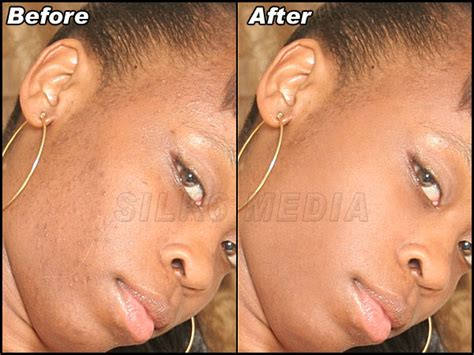 face tattoo removal remover pictures