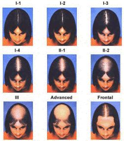 female pattern hair loss dht the difference between male female pattern hair loss