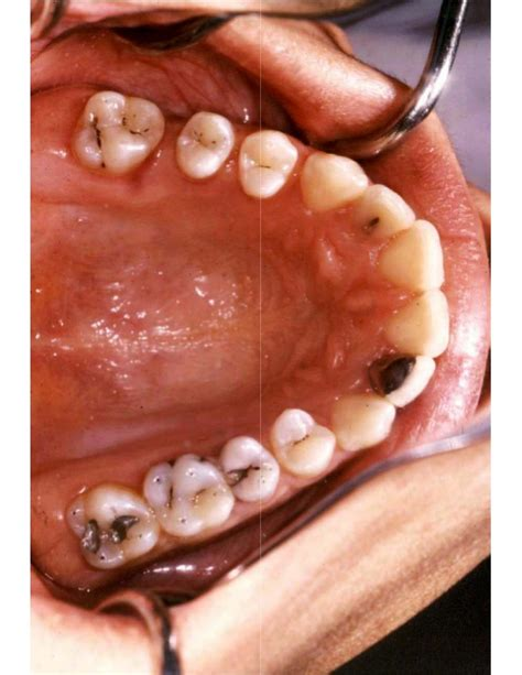 Operative Dentistry introduction to operative dentistry