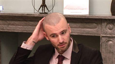 hair tattoo cost uk micro scalp pigmentation london scott youtube