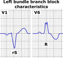 lbbb pattern intraventricular conduction delay electrocardiogram wikidoc