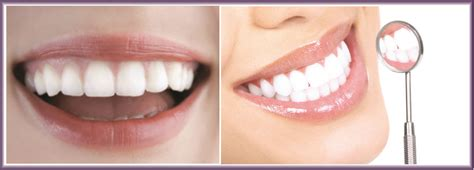 beauty review  home teeth whitening  smilepod