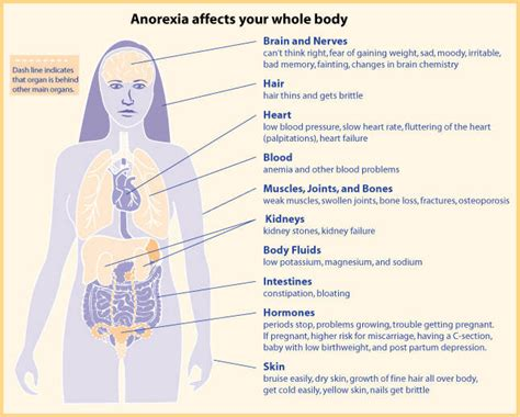 Sectioned For Anorexia by Disorders Disorders New Mexico