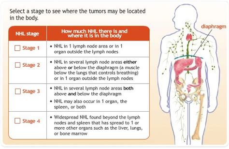 lymphoma stages 17 best images about non hodgkin s lymphoma on non hodgkins lymphoma