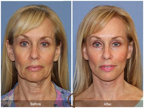 photo gallery before and after cosmetic surgeon in the orange county mini facelift newport beach mini facelift