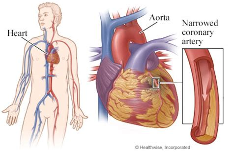 blocked arteries and open surgery coronary artery bypass surgery for coronary artery disease