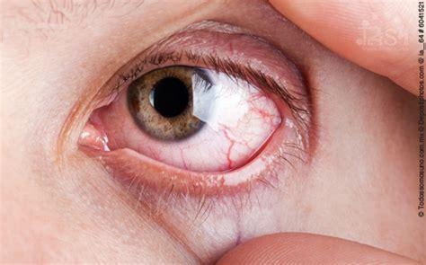 Mata Eyelid Transparant 191 por qu 233 revientan los vasos sangu 237 neos de los ojos todos somos uno