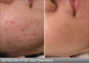 Mederma and acne scars skin tomuch us