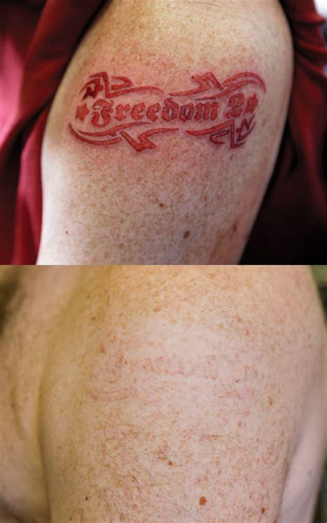 the quot mom quot laser tattoo removal miami fl picosure removable tattoo ink tattoos for men