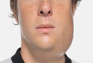 Mumps symptoms causes complications diagnosis treatment and
