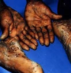 imagenes de un pene enfermo de sifilis enfermedades de transmision sexual sifilis