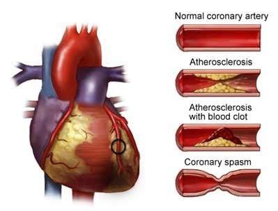 l ansia porta dolori al petto med int e geriatria infermieri ravenna angina cardiaca