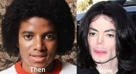 what was wrong with michael jackson michael jackson plastic surgery gone wrong car interior