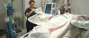 Burns 187 alfred intensive care unit