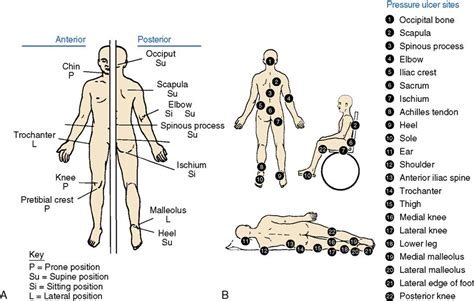 pressure ulcer locations diagram diagram of bony prominences of human pictures to pin