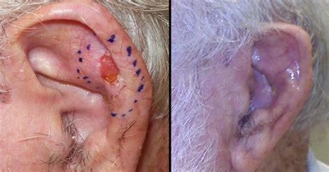 ear tumor image gallery ear cancer