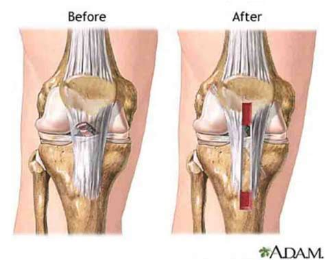 acl surgery cost anterior cruciate ligament acl repair surgery abroad low cost acl repair surgery