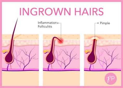 what it means to have an ingrown hair without pus how to prevent ingrown hairs the pretty pimple