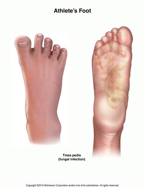 athletes foot shoe athlete s foot tinea pedis hallmark health