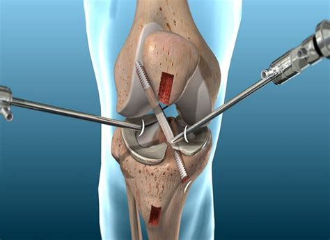 anterior cruciate ligament acl what is anterior cruciate ligament reconstruction acl
