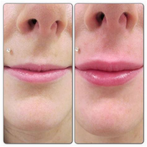 Augmentation Fill by Lip Fillers Before And After 1ml The Of