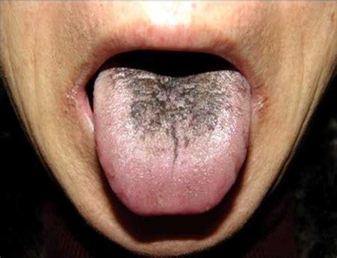 black spot on s tongue pin black tongue spots on