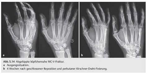 Fachb 252 Cher Software Und Dvds Kurzgefasste Handchirurgie