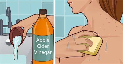 spot apple cider vinegar applying apple cider vinegar to your will alleviate age spots acne more