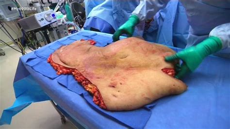 lupe samano weight loss obese woman loses 423lbs during gruesome skin removal