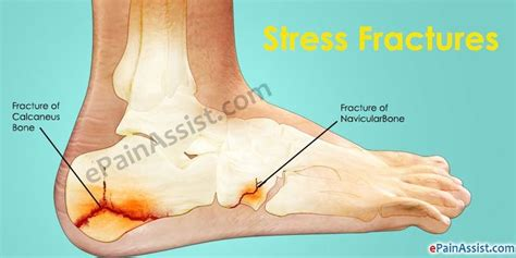 Bottom Middle Foot Burning From Detoxing by 2579 Best Images About Plantar Fasciitis Treatment On