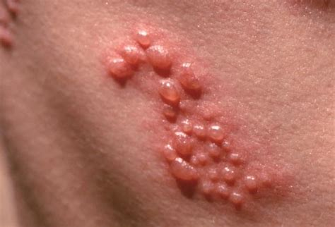 shingles slideshow what is the shingles rash symptoms