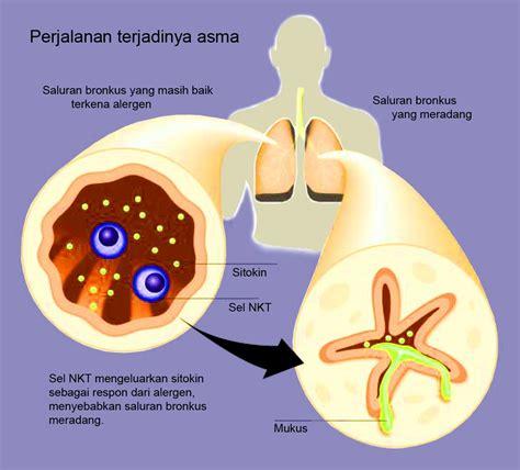 gejala penyakit asma ciri ciri dan tanda sakit asma