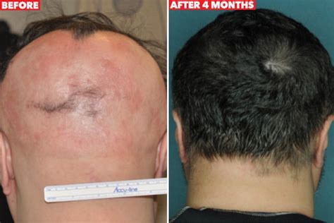 new discoveries in hair regrowth researchers find miracle cure for baldness graphic