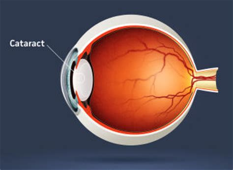 lenses intraocular