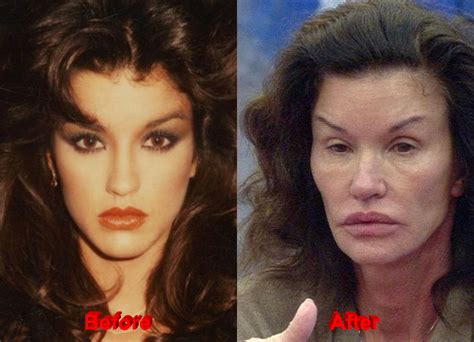 photo gallery before and after cosmetic surgeon in the janice dickinson plastic surgery failed