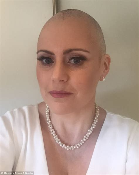 Is Bald She by With Cancer Shares Image Of Bald On Wedding Day