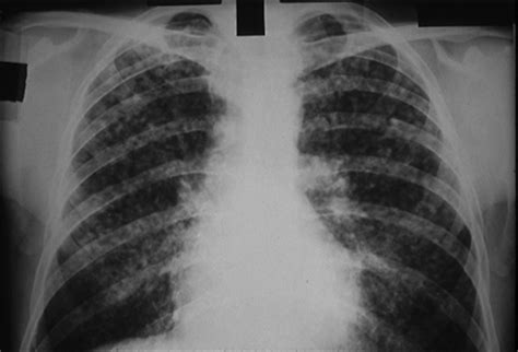 imaging in silicosis and coal worker pneumoconiosis coal worker s pneumoconiosis causes symptoms treatment