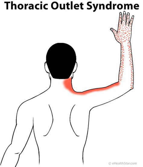 Msm Detox Symptoms Aching Shoulder Arm by Image Gallery Heavy Arms Symptoms