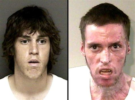 Meth Detox Pills by 132 Best Drugs Are Bad Images On Drugs