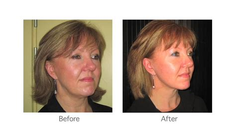 haircuts that help disguise or lift how to hide facelift scars michael douglas plastic