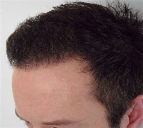 alopecia specialist in chicago hair specialist for alopecia in chicago