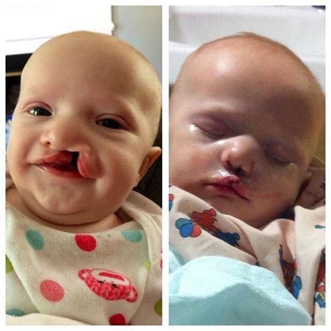 s new smile a baby with cleft lip and palate books cleft lip before after surgery medicine