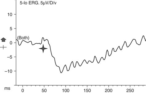pattern dystrophy erg common spectral domain oct and electrophysiological