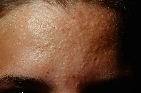 skin wart flat warts on forehead pictures photos