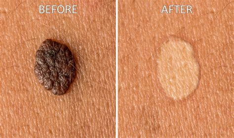 how to get rid of moles in the backyard how to get rid of moles 9 home remedies to remove