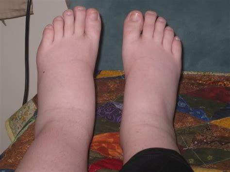 is it normal to have swollen feet after c section mama s with swollen feet question babycenter