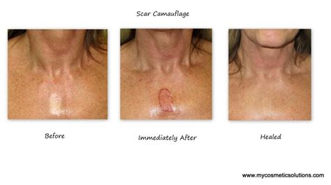 medical tattooing for scars gallery my cosmetic solutions