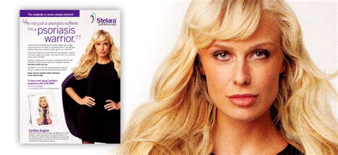 who is the actress in the stelara commercial who is the actress in the stelara commercial psor 205 ase